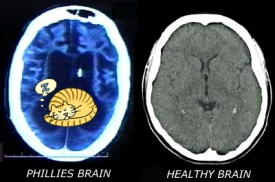 Phillies brain.jpg